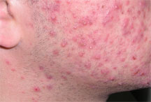 Orlando Acne Treatment