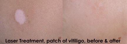 Orlando VITILIGO Treatment