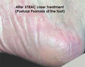 Psoriasis Laser Treatments