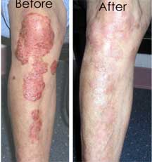 Orlando Psoriasis Laser Treatments