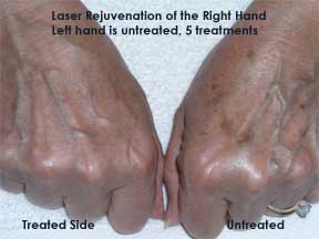 Orlando Laser Rejuvenation of the Hands