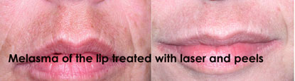 Orlando Facial Laser Rejuvenation