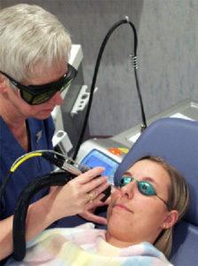 Orlando Facial Laser Rejuvenation