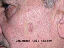 Orlando SQUAMOUS CELL CANCER Treatment