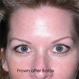 Orlando Botox
